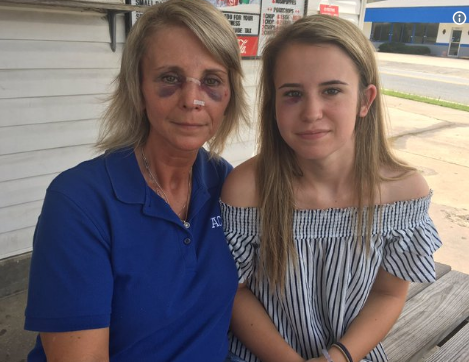 Baxley Police are looking for two customers who assaulted a restaurant owner and her daughter.
