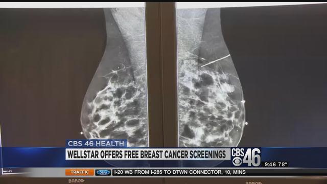 Radiology breast imaging
