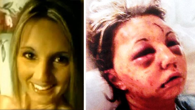 Tina Waddell before and after the attack