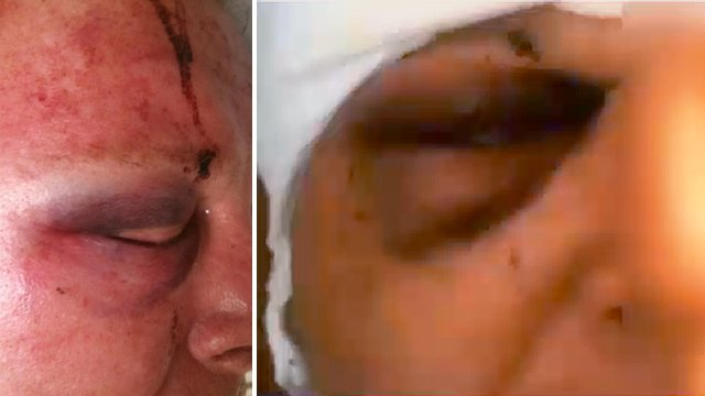 63-year-old victim's right eye